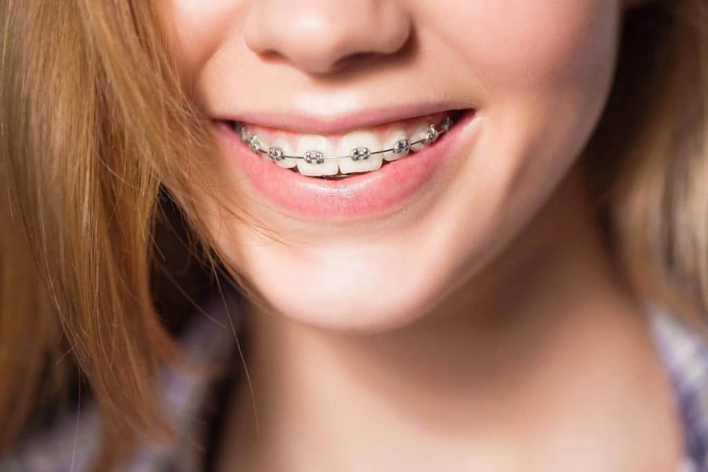 7-Things-You-Must-Know-Before-Trying-Invisible-Braces-2-1024x683